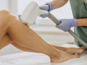 How Long Does Laser Hair Removal Last